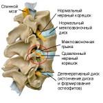 межпозвоночная грыжа лечение